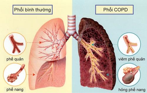 Ðể kiểm soát tốt bệnh phổi tắc nghẽn mạn tính