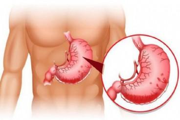 Xuất huyết tiêu hóa do tăng áp lực tĩnh mạch cửa – căn bệnh