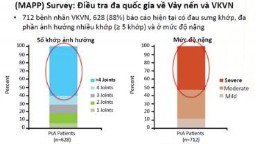 Những tiến bộ trong chẩn đoán và điều trị Viêm khớp vảy nến