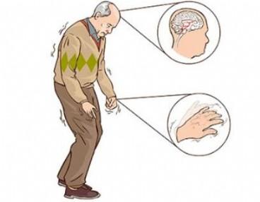 Bệnh Parkinson: Việc chẩn đoán bệnh sớm là rất cần thiết