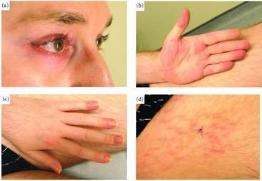 Bị ban đỏ tím ở quanh mắt, cổ, vai, khớp tay...  cần cảnh giác với bệnh viêm da cơ