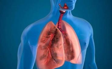Corticosteroids đường toàn thân  có vai trò như thế nào trong điều trị đợt cấp COPD?